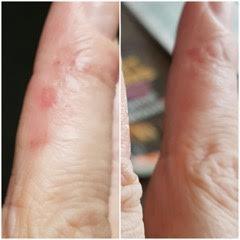 CK finger - before & after
